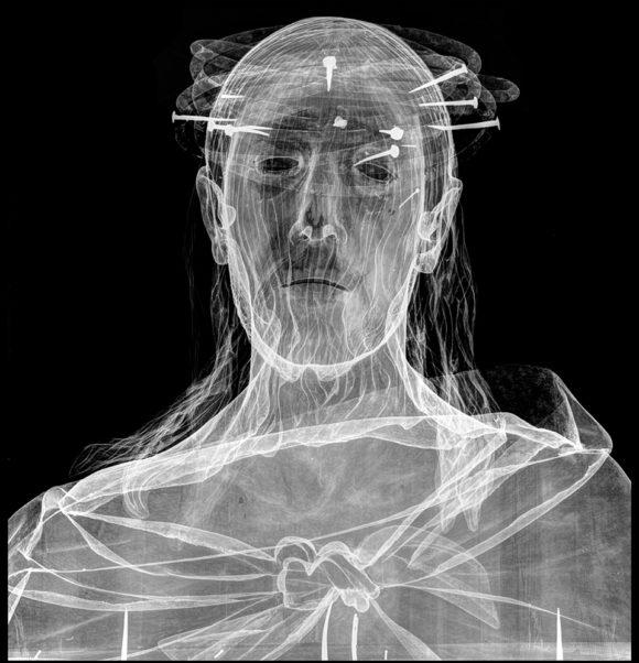 Estudio radiográfico comparativo de Pedro de Mena